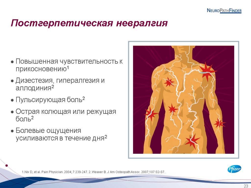 Постгерпетическая невралгия: симптомы и лечение