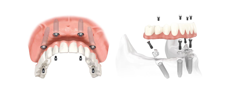 протезирование зубов виды