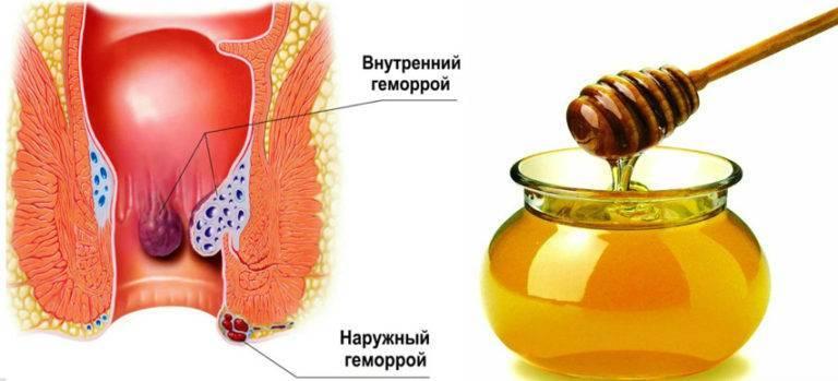 можно ли лечить геморрой медом