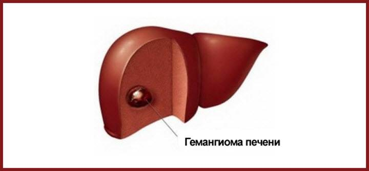 Лечение гемангиомы печени народными средствами в домашних условиях