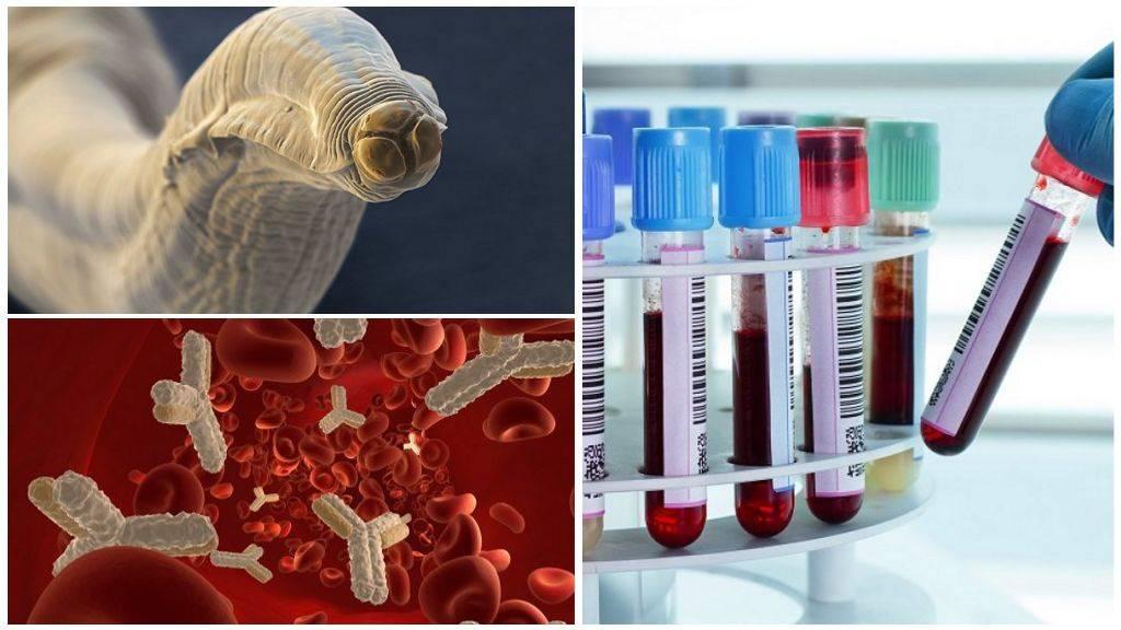 анализ крови на токсокароз