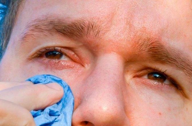 Как правильно промывать глаза новорождённому.