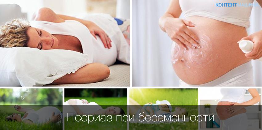 псориаз во время беременности