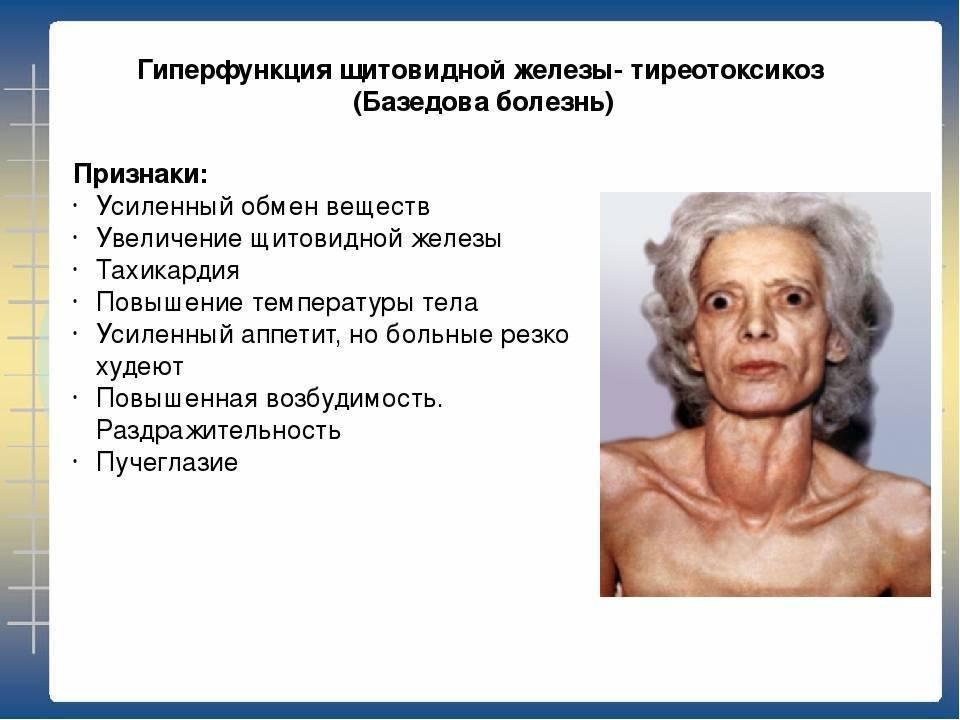 Тиреотоксикоз щитовидной железы – что это такое? гипертиреоз, тиреотоксикоз – симптомы, лечение
