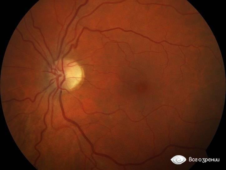 Как лечить гипертоническую ангиопатию сосудов сетчатки глаза и какие ее признаки