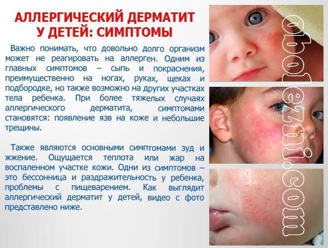 Эффективное лечение аллергического дерматита