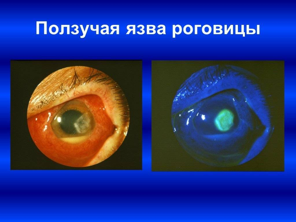 Болезни глаз у человека: список глазных заболеваний, их симптомы и лечение