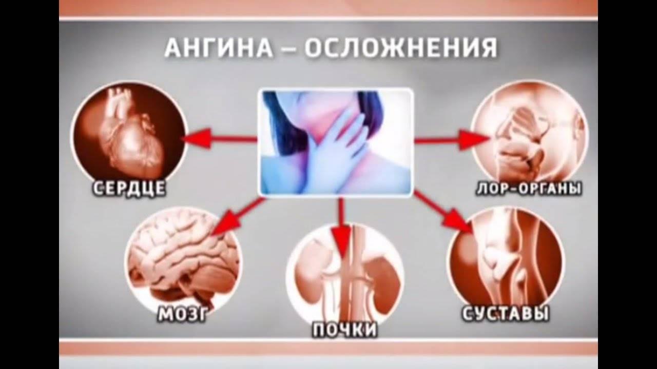 Осложнения после ангины у детей и взрослых: симптомы, лечение