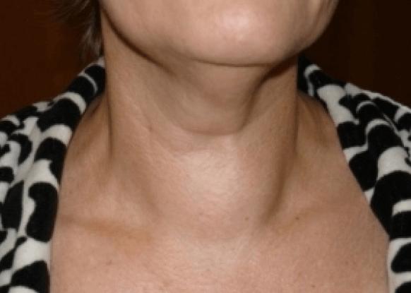 Зоб щитовидной железы симптомы, лечение, фото | pro shchitovidku