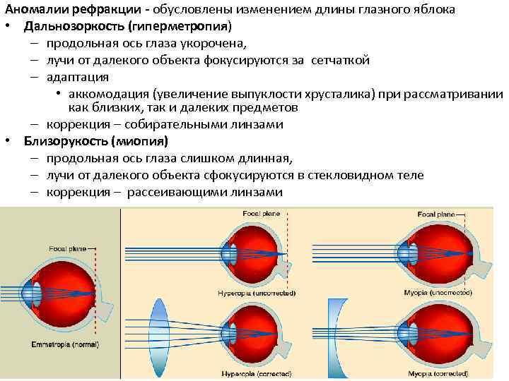 аномалии рефракции