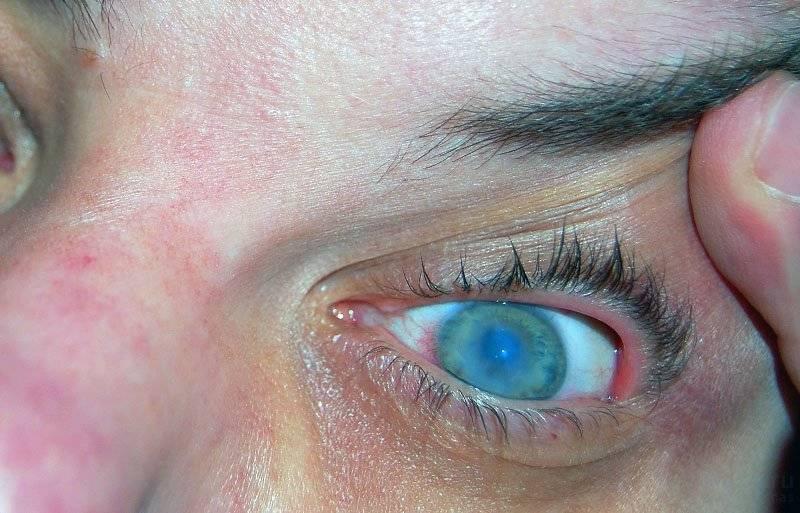 лечение глаз после сварки в домашних условиях
