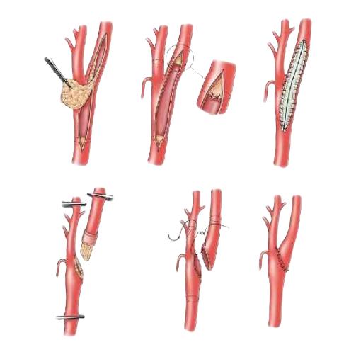 Что такое каротидная эндартерэктомия? виды операции и осложнения во время операции и после