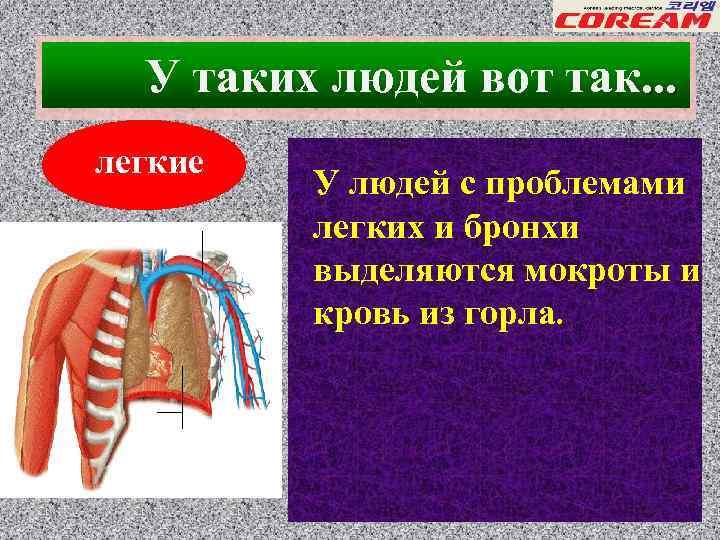 При кашле отхаркивается кровь и болит горло