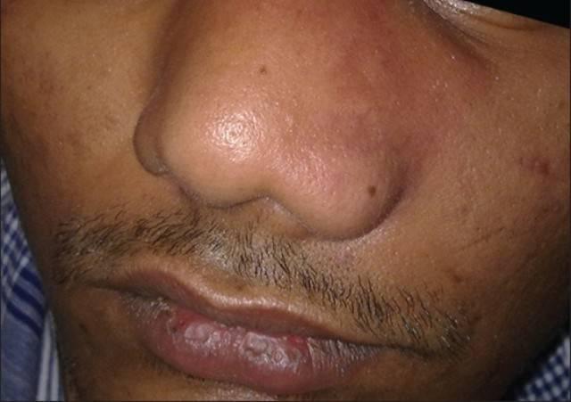 Инфекция в носу у ребенка