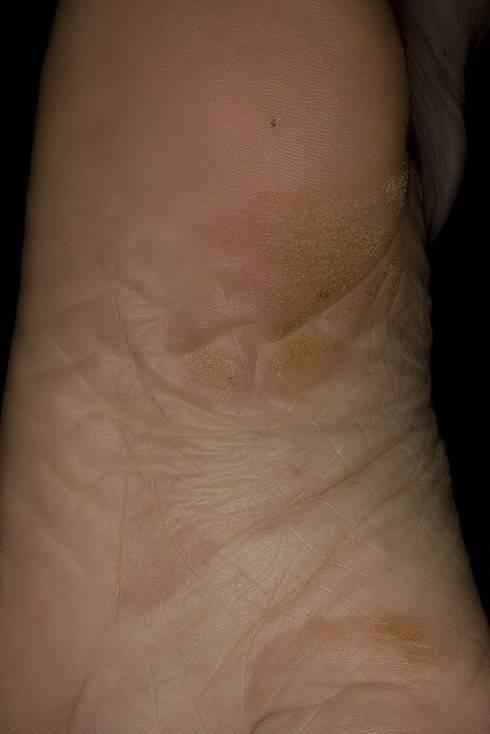 лечение ладонно подошвенного псориаза