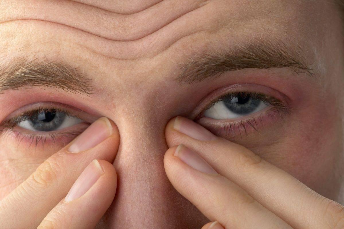 Глаза покраснели болят и слезятся глаза