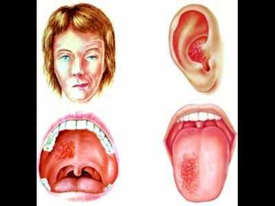 Красные точки в горле у ребенка: температура, горло красных точках болит