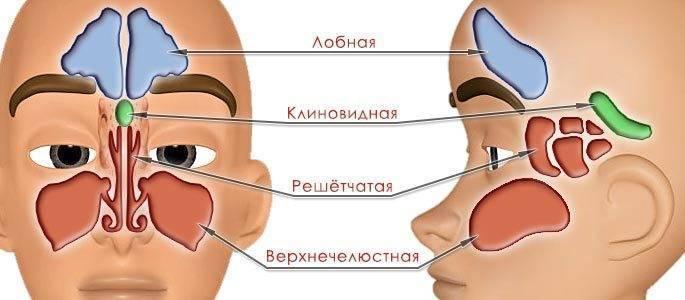 Острый синусит – как и чем лечить?