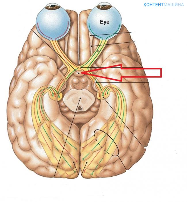 Что такое атрофия зрительного нерва и насколько данная патология опасна?