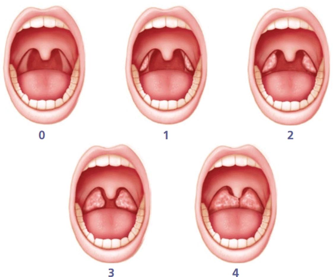 Как не позволить боли в горле перерасти в простуду