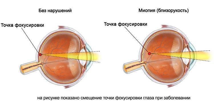 Сложный миопический астигматизм обоих глаз