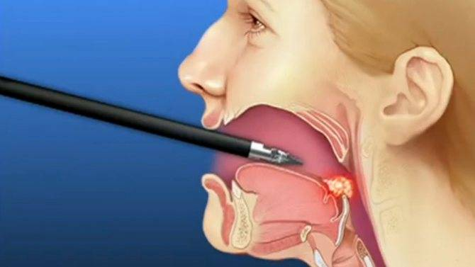 Лазерная лакунотомия – отзыв