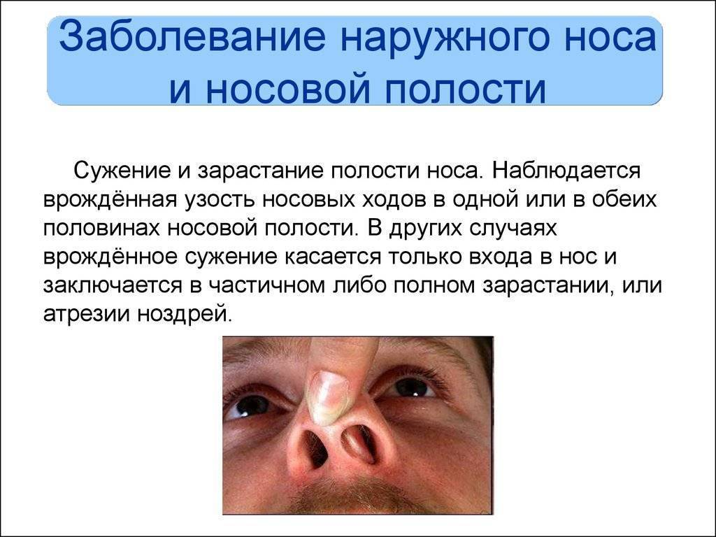 бактериальная инфекция в носу лечение