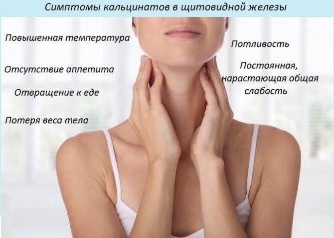 Кальцинаты в узле щитовидной железы лечение