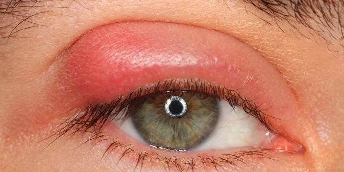 ребенку надуло глаза чем лечить