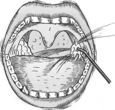Чем промывать миндалины при хроническом тонзиллите, промыть миндалины при лечении хронического тонзиллита