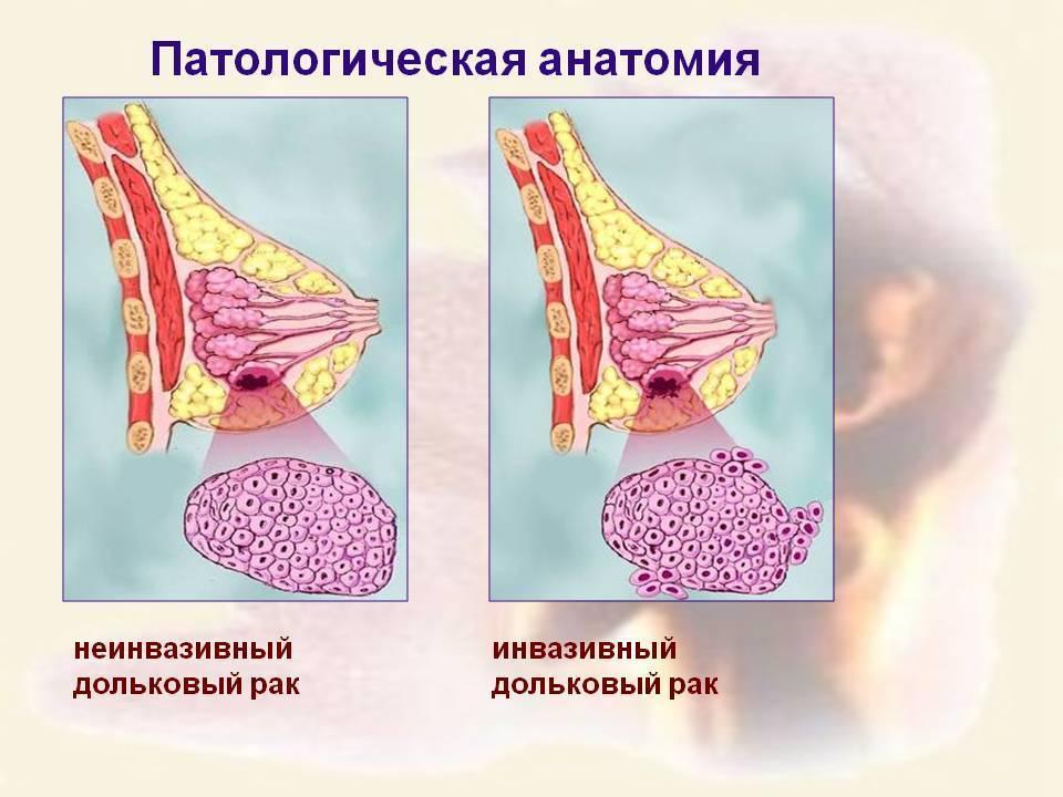 инвазивный неспецифицированный рак молочной железы 2 степени