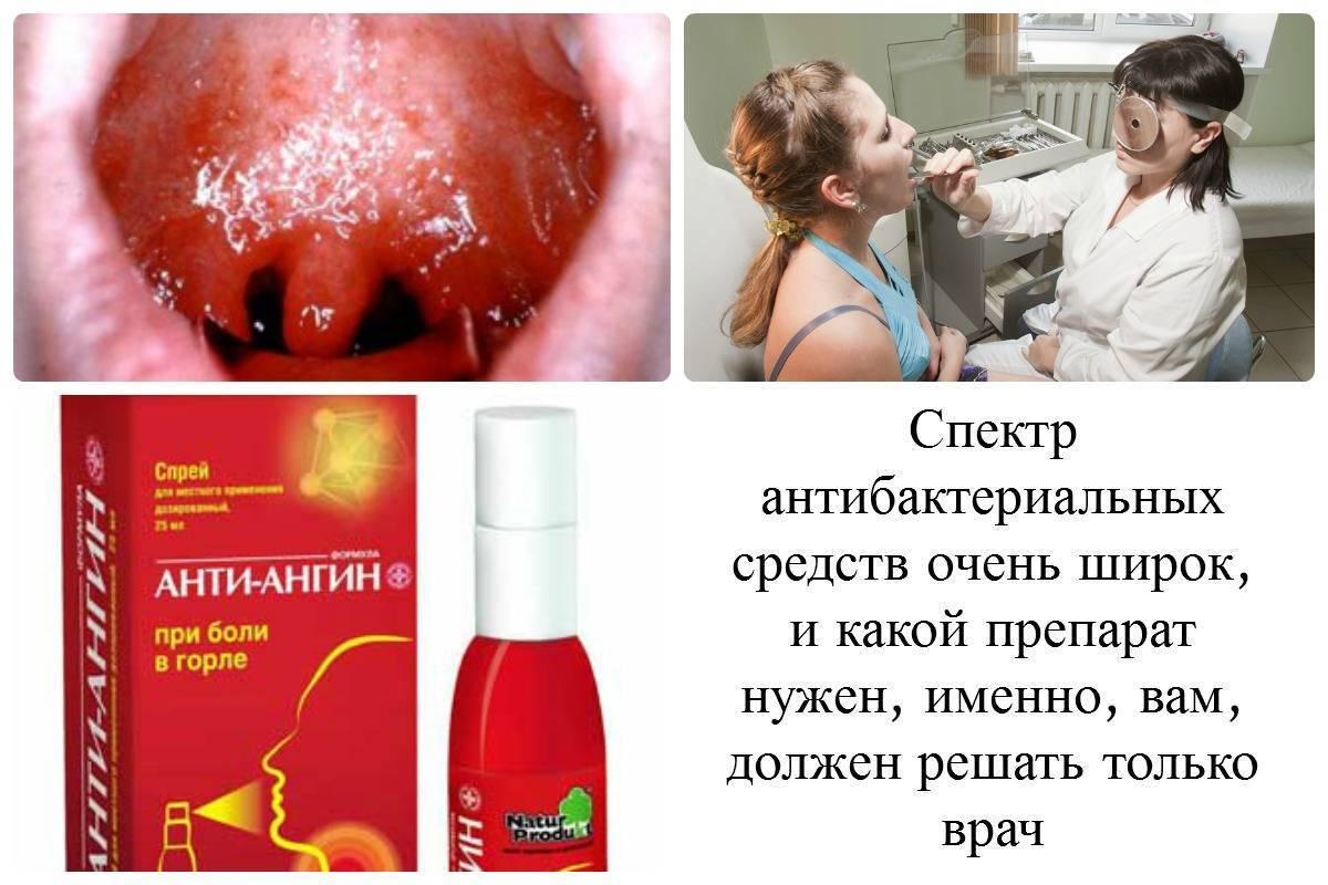 Как лечить горло в домашних условиях у детей