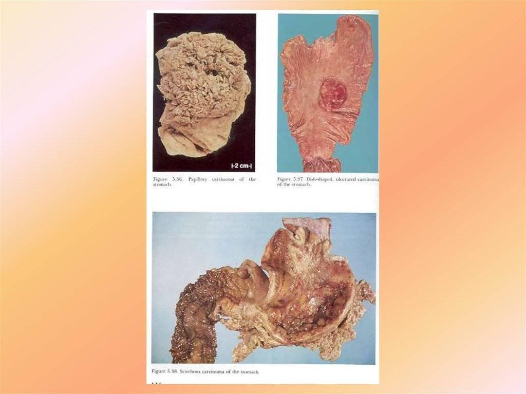 Аденома молочной железы, как следствие гормонального дисбаланса