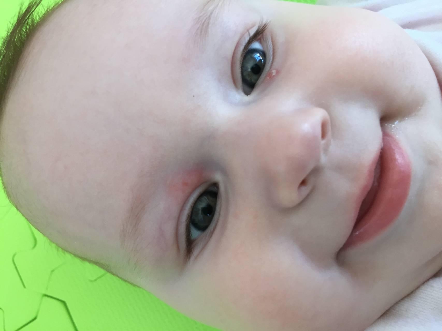 Покраснение нижнего века у ребенка:  вопросы по офтальмологии
