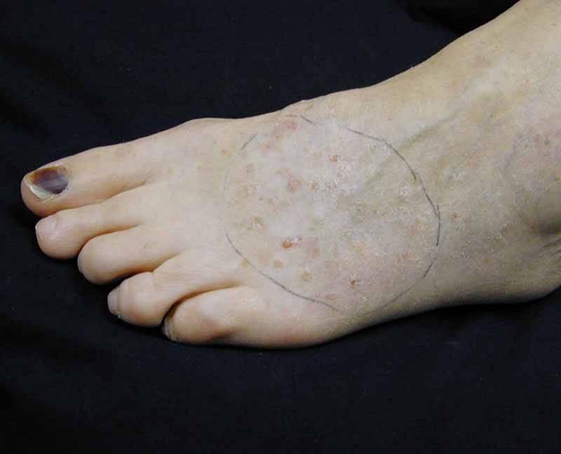 Причины и лечение ладнно-подошвенного псориаза