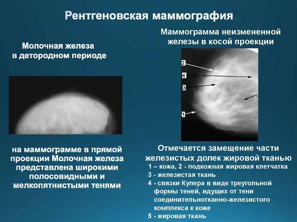Инволюция молочных желез - симптомы болезни, профилактика и лечение инволюции молочных желез, причины заболевания и его диагностика на eurolab