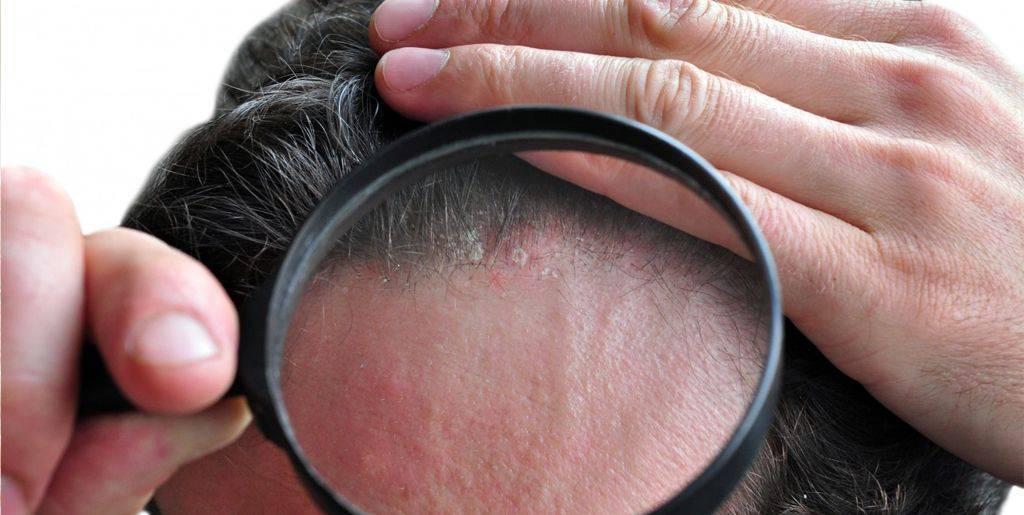 Псориаз ушной раковины и его лечение