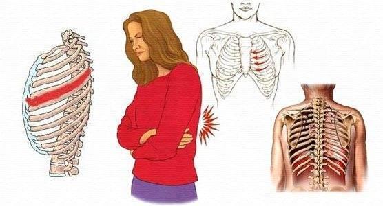 Если болит справа, слева или спереди в области ребер при кашле — что это может быть?