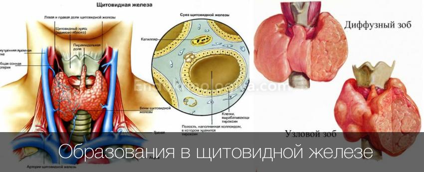 Эхогенность паренхимы снижена щитовидной железы