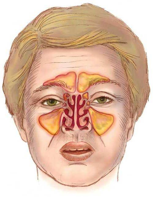 хронический риносинусит симптомы