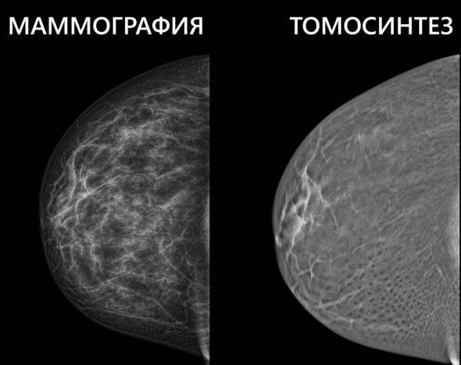 маммография с какого возраста