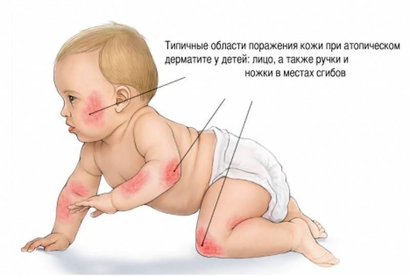 аллергический дерматит у детей до 3 лет
