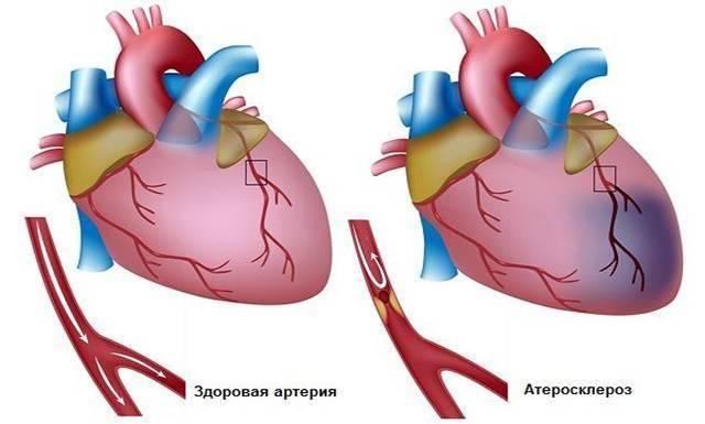 Аортосклероз легких что это такое и как лечить