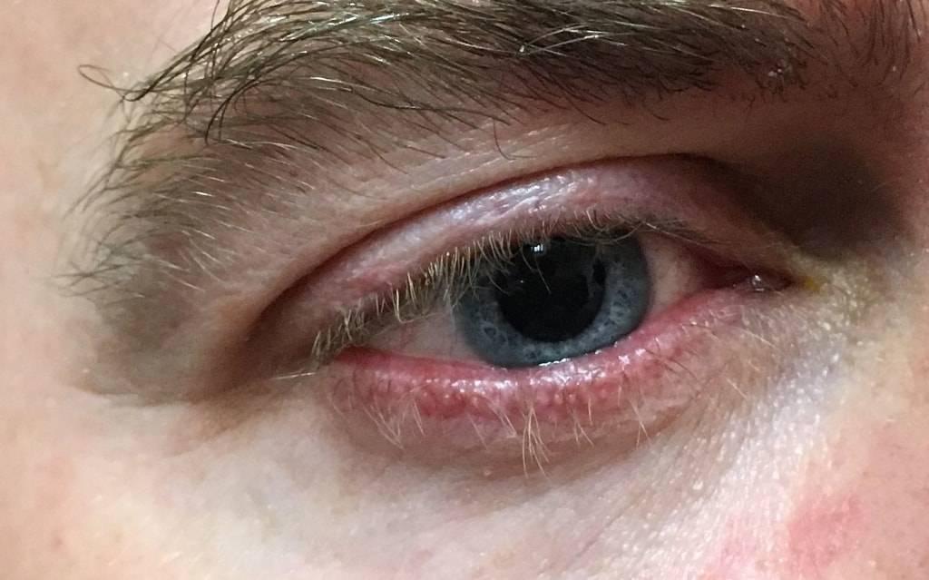 Особенности чешуйчатого блефарита: симптомы и сложность лечения