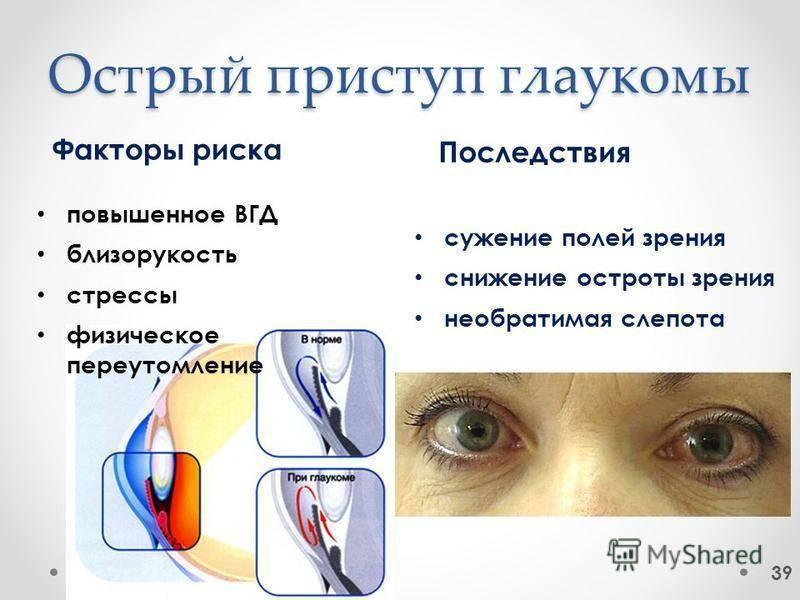 Признаки острого приступа глаукомы и неотложная помощь