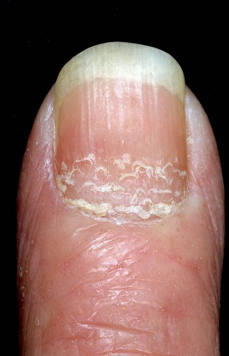 Псориаз ногтей: описание, лечение, опыт форума « псориаз? давайте лечиться вместе.