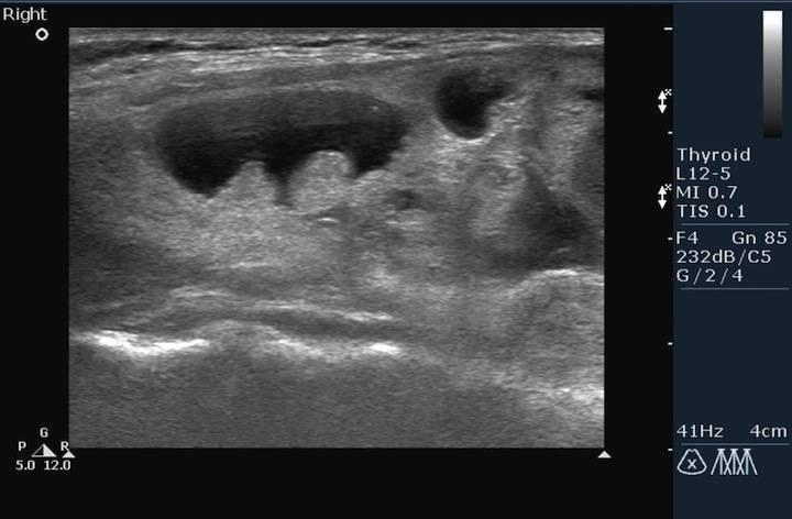микрокальцинаты в щитовидной железе
