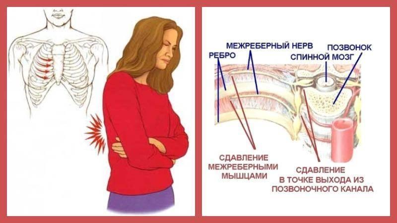 Межреберная невралгия справа — причины, симптомы и лечение