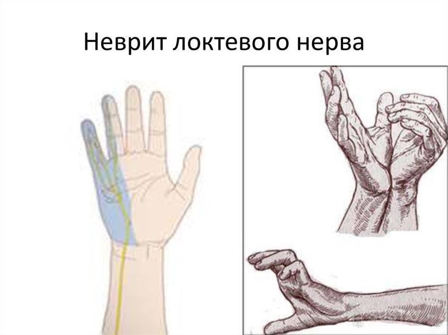 туннельная невропатия локтевого нерва