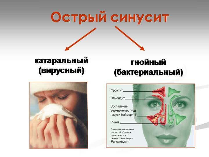 острый риносинусит симптомы